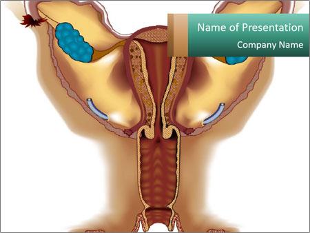 Gynecology Problem Powerpoint Template Backgrounds Google Slides Id 0000028910 Smiletemplates Com