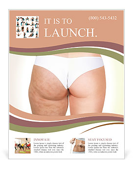 Cellulite Problem Flyer Template