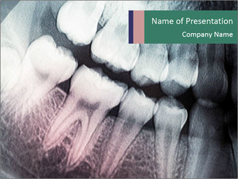 X-ray of teeth PowerPoint Template