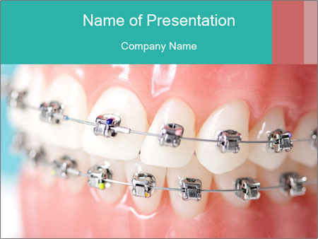 Braces PowerPoint Template